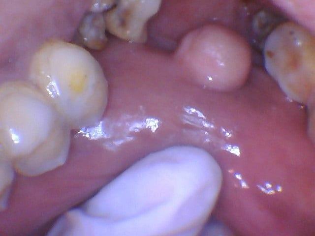 Sumanben (Fibroma) 4